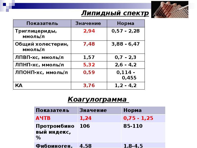 Анализ крови на липидный профиль                                            (липидограмма)