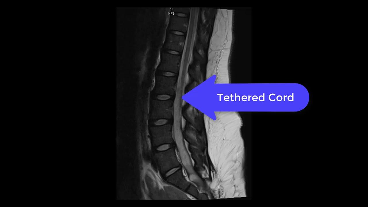 Все, что нужно знать о spina bifida