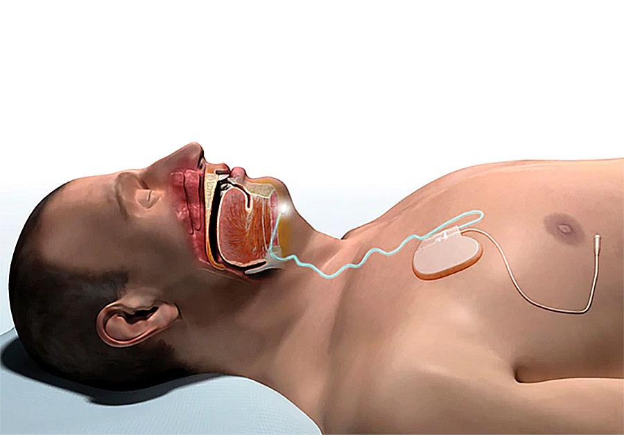 Апноэ сна: симптомы, последствия. запись на прием к врачу