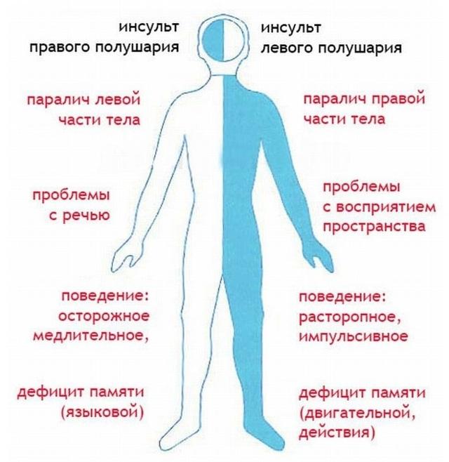 Ишемический и геморрагический инсульт: признаки, отличия и лечение
