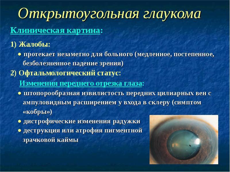 Что такое глаукома глаз, причины, своевременная диагностика и лечение