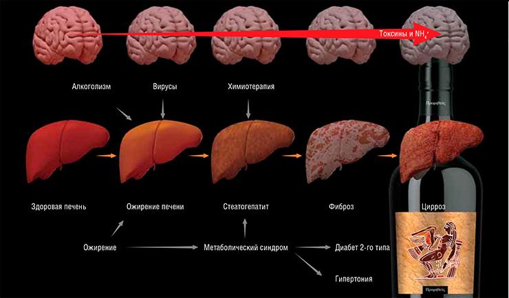 Печеночная энцефалопатия при циррозе печени