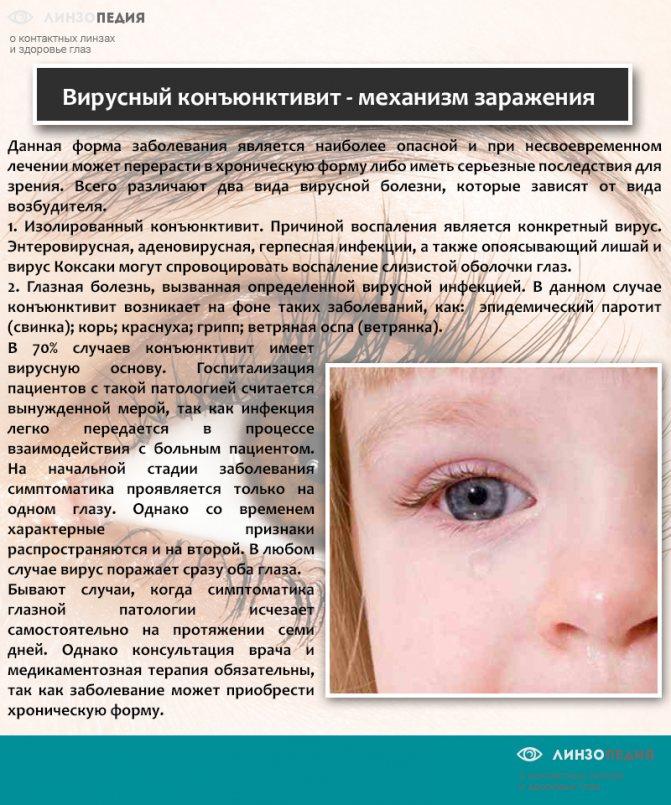 Анизокория (зрачки разного размера) у взрослого и ребенка: причины возникновения, симптомы и лечение