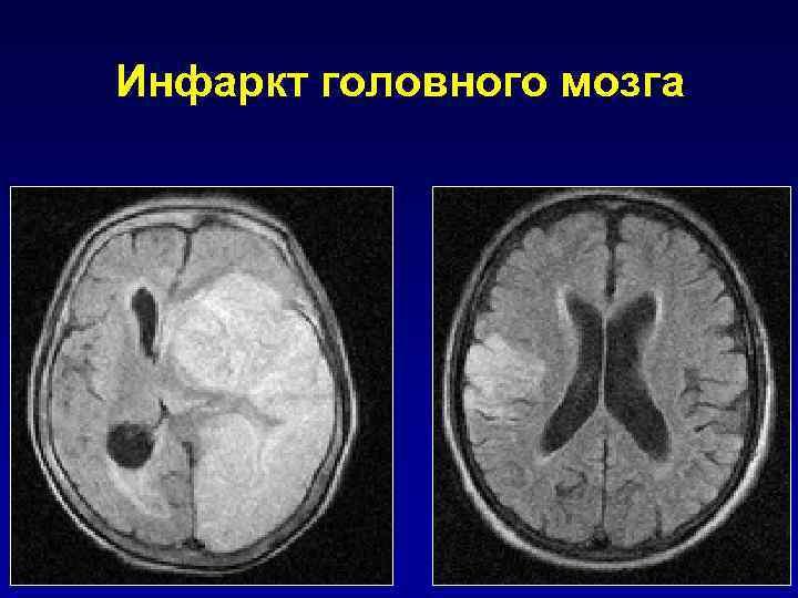Инфаркт головного мозга: что это такое, причины, симптомы, диагностика, лечение