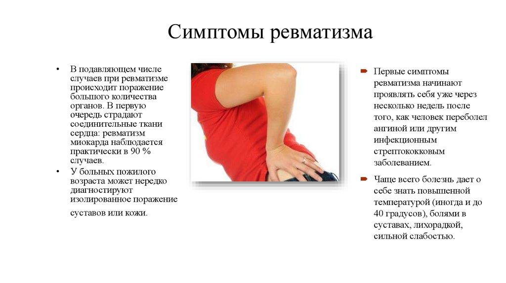 Ревматизм (ревматическая лихорадка): признаки, симптомы, лечение и профилактика у взрослых