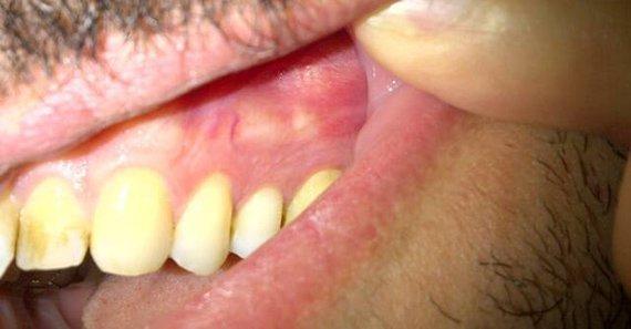 Киста на зубах: что это, симптомы, лечение, удаление - prorak.info