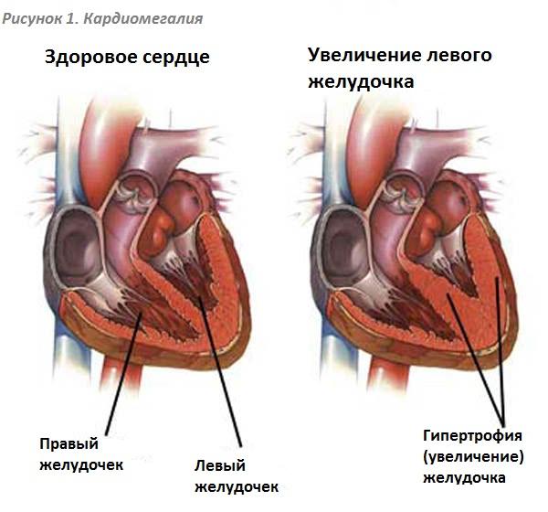 Кардиомегалия что это такое - здоров.сердцем