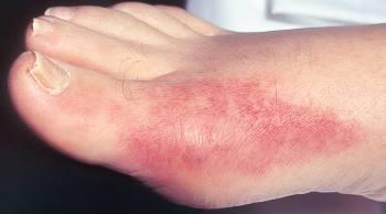 Подагра у мужчин: признаки, лечение, особенности, симптомы на ногах