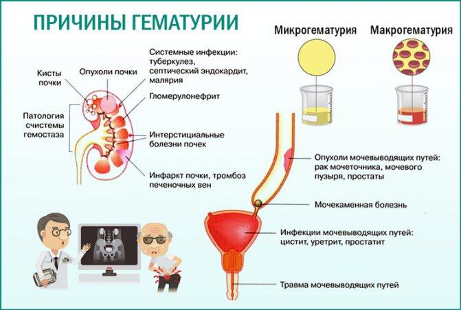 Кровь в моче (гематурия) у женщины, у мужчины.