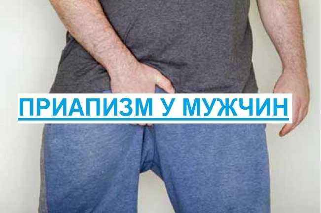Приапизм у мужчин и женщин: что это такое, лечение и причины | zaslonovgrad.ru