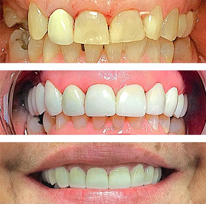 Зубные коронки: какие бывают, сколько стоят, какие коронки на зубы самые лучшие?