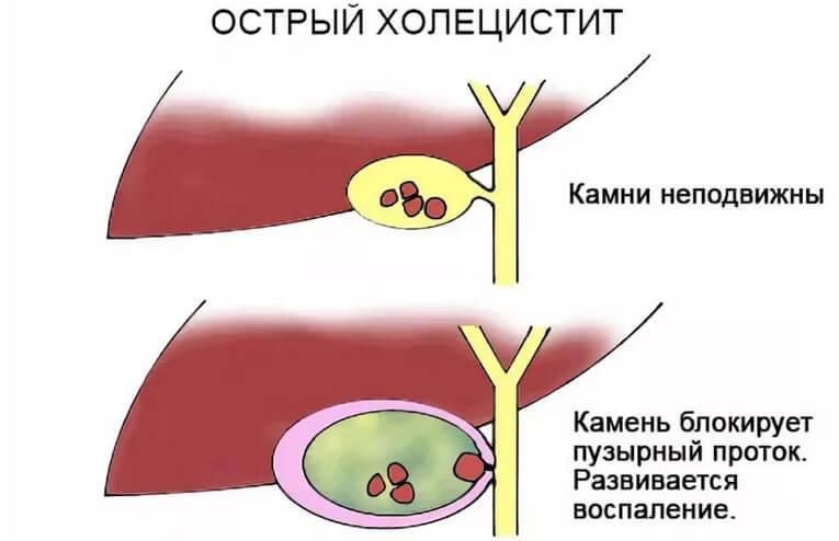 Холецистит (видео) - симптомы и лечение. журнал медикал