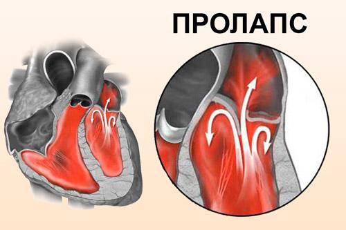 Пролапс створок митрального клапана сердца