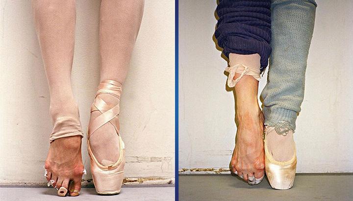 Пуанты: как появилась обувь балерины