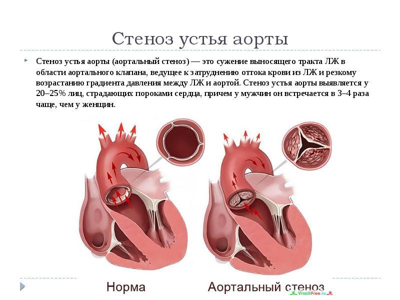 Порок сердца: это смертельно на самом деле?