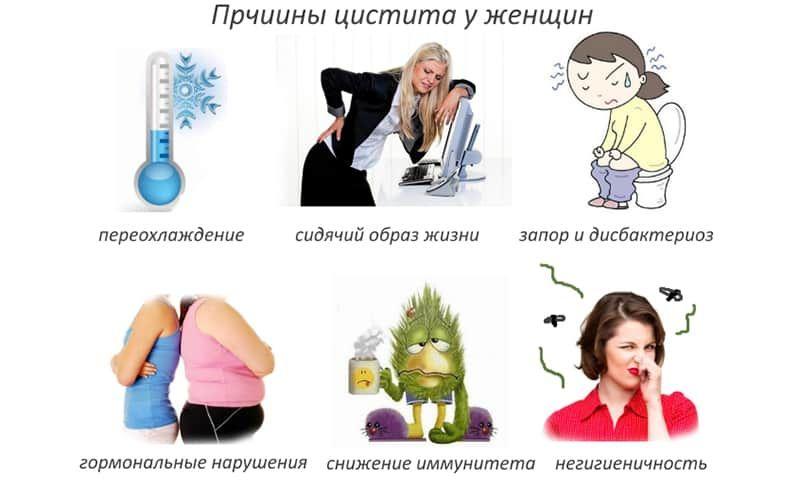 Цистит у женщин: лечение и профилактика. что такое хронический цистит у женщин