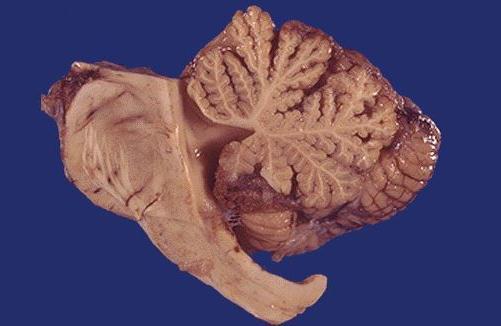 Мозжечок и виды его поражения