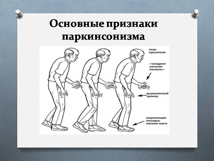 Причины, диагностика и лечение болезни паркинсона