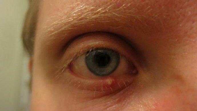 Начинается ячмень на глазу: что делать в домашних условиях, как предотвратить заболевание на ранней стадии