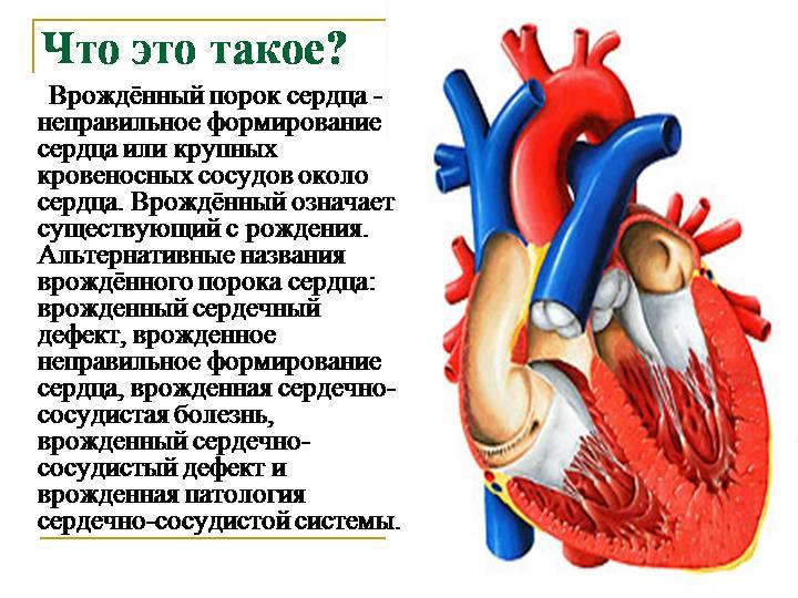 Порок сердца что это такое - здоров.сердцем