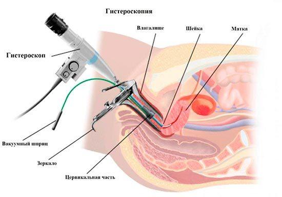 Гистерорезектоскопия полипа эндометрия — что это такое