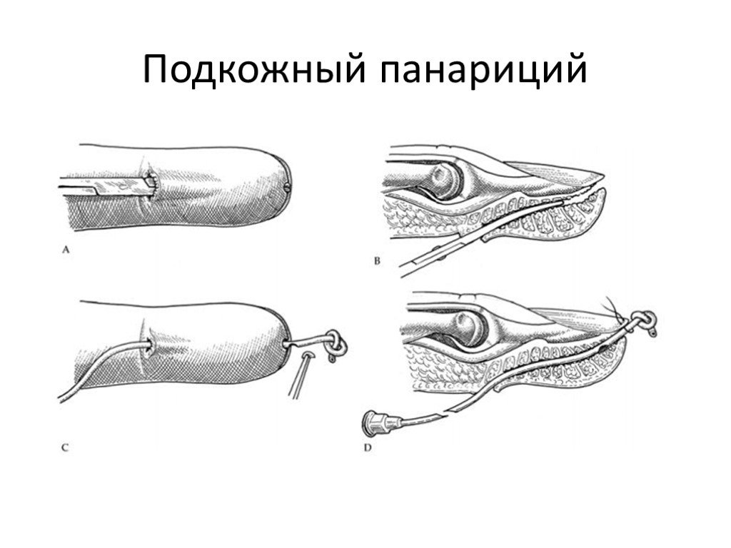 Панариций: виды околоногтевой и иные, диагностика и лечение, классификация, и что это такое и как избавиться от болезни на пальцах ног и рук в домашних условиях?
