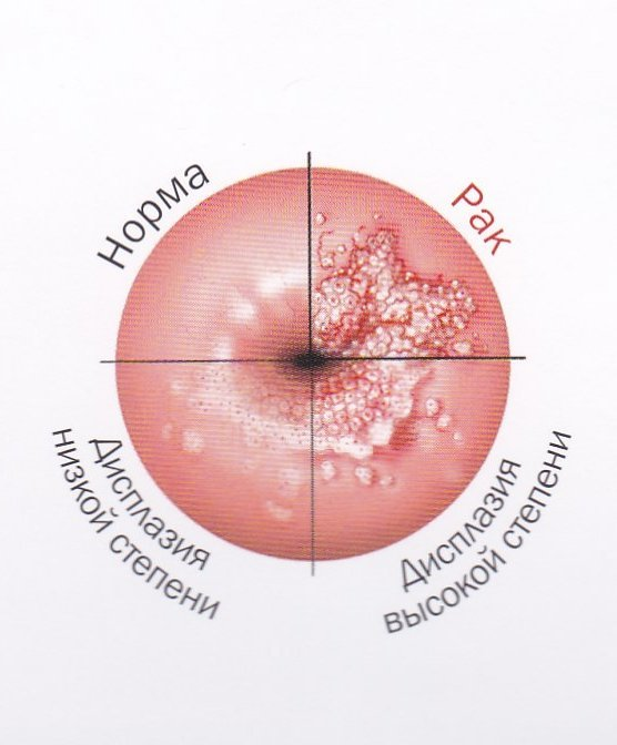 Лечение дисплазии шейки матки 3 степени - прогнозы и методы