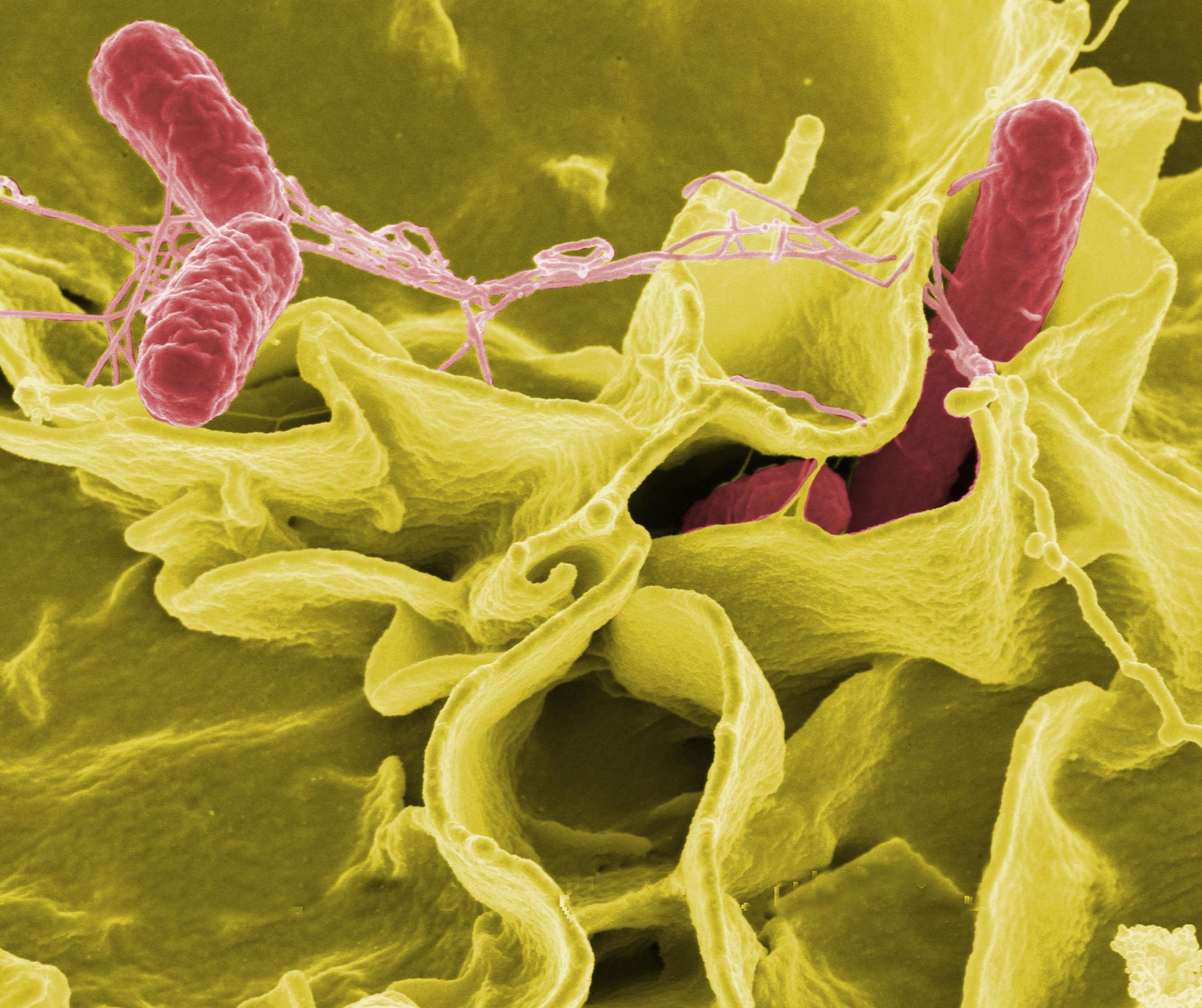 Болезнь сальмонеллез: симптомы, признаки и лечение отравление.ру болезнь сальмонеллез: симптомы, признаки и лечение