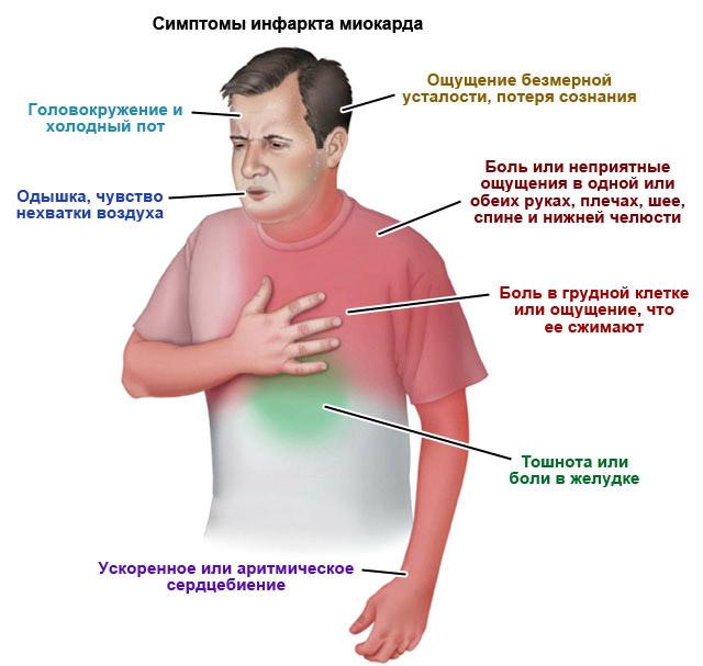 Инфаркт миокарда: первые признаки, как избежать тяжелых последствий?   здорова и красива