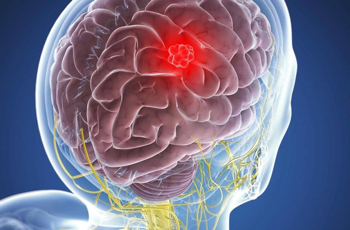 Менингиома головного мозга - что это такое, симптомы, прогноз жизни и лечение в москве