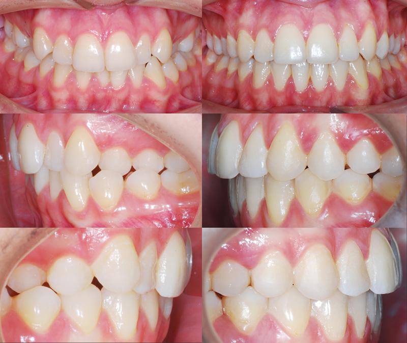 Открытый прикус: описание, лечение, фото до и после