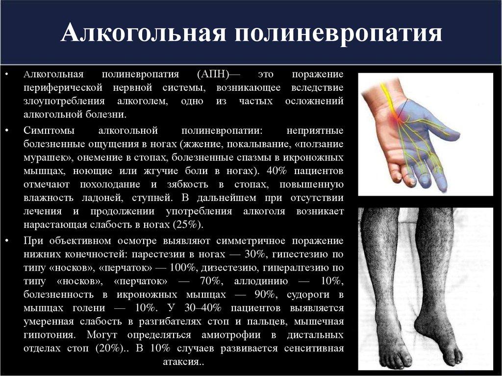 Полинейропатия - что это такое: виды признаки и лечение