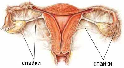 Симптомы и лечение спаек кишечника - medside.ru