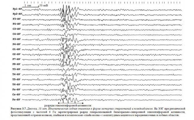 Компьютерная электроэнцефалография (ээг) с видеомониторингом в состоянии бодрствования и сна (в том числе и во время ночного сна) с функциональными пробами