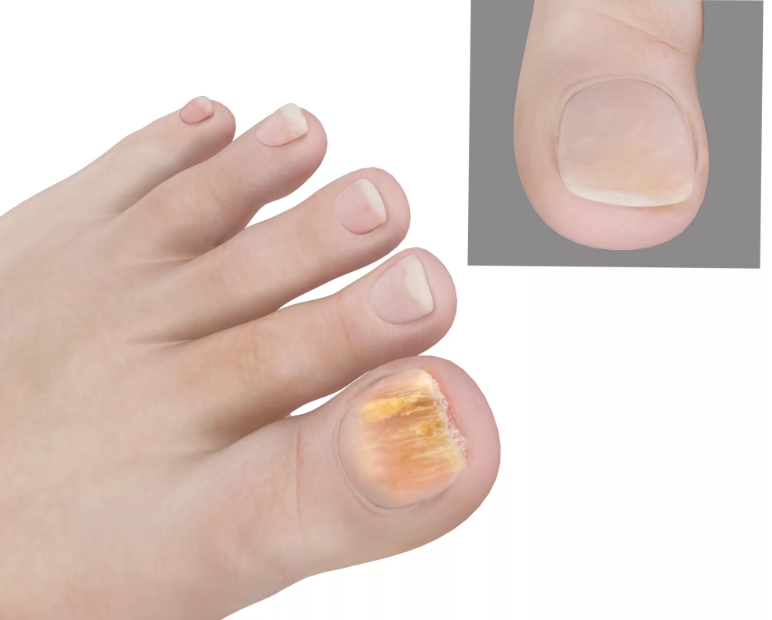 Микоз кожи — что это такое? фото, симптомы и лечение, препараты