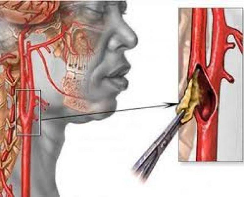 Что такое атеросклероз брахиоцефальных артерий и какой прогноз на жизнь?