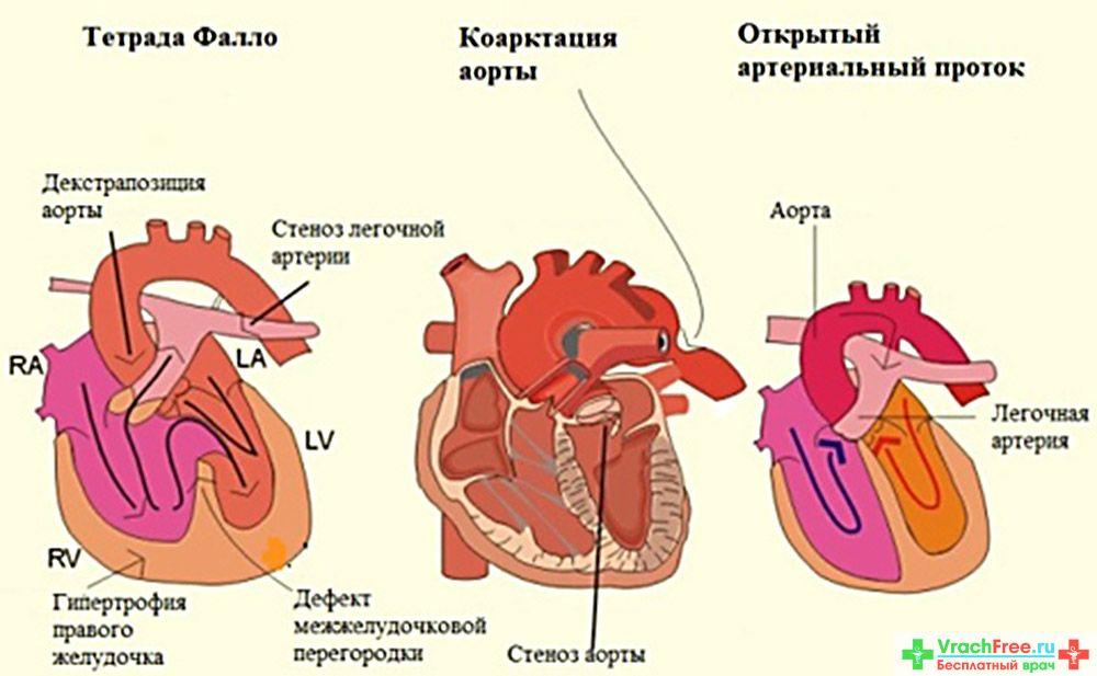 Порок сердца - признаки, симптомы, причины, диагностика и способы лечения заболевания