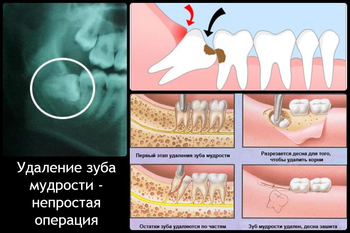 В какой год появляются зубы мудрости или восьмерки, где находятся зубы мудрости и сколько их