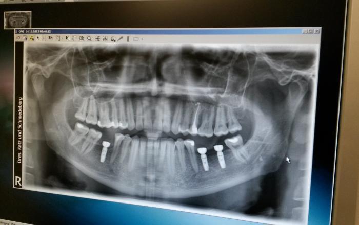 Какой из видов протезирования зубов лучше