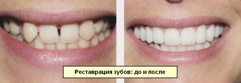 Ортодонтические трейнеры: показания, разновидности, нюансы терапии, цены