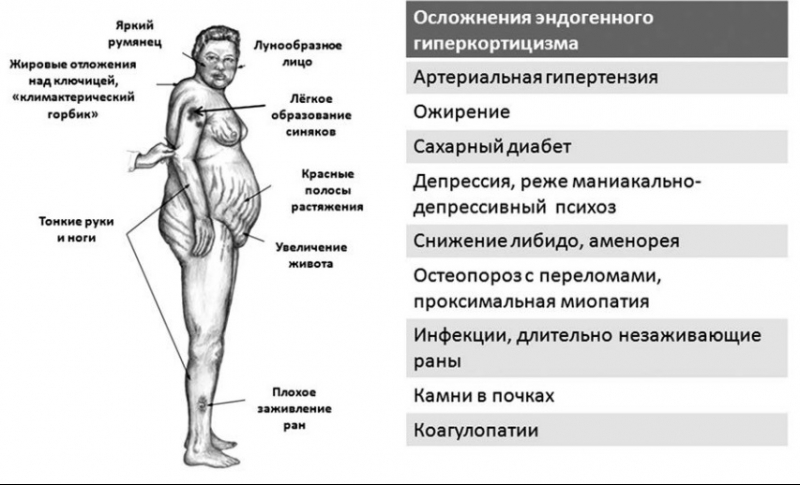 Кортизол: норма у женщин в таблице по возрасту. какая норма уровня кортизола нмоль/л в крови у женщин