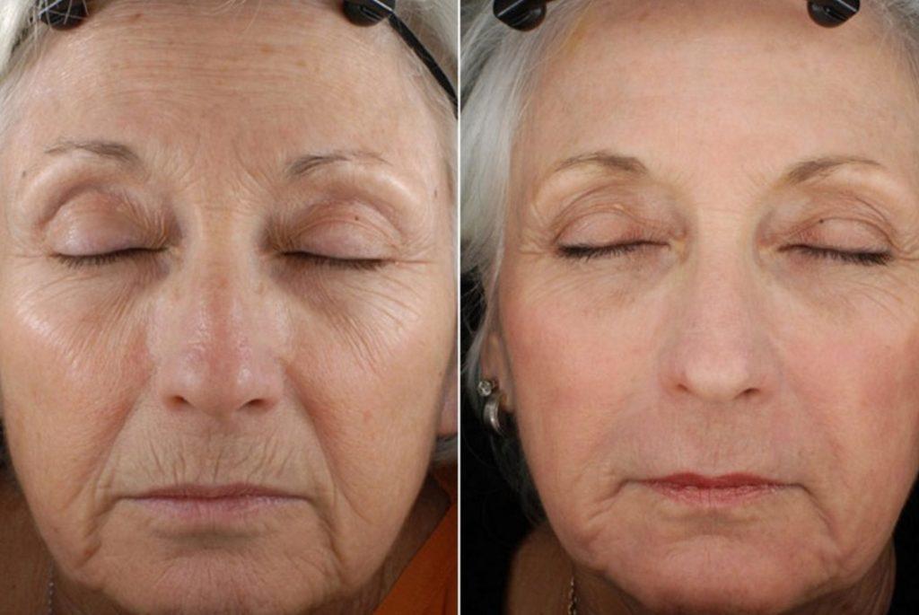 Выбираем хорошую лазерную косметологию | krasota.ru
