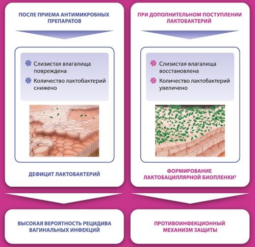 Лечение бактериального вагиноза у женщин: препараты, схема лечения