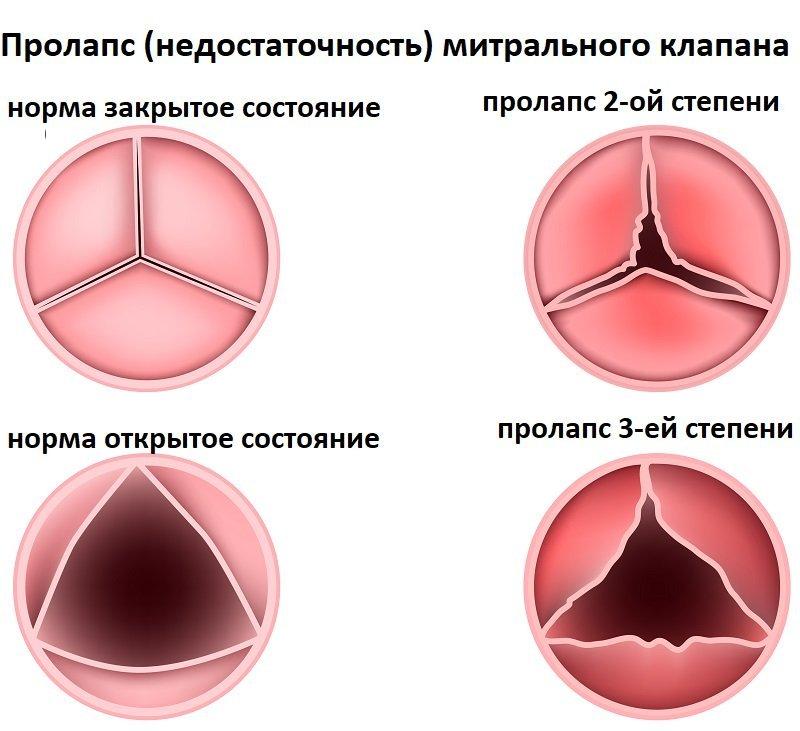 Пролапс митрального клапана 1 степени с регургитацией: что это такое, симптомы и лечение