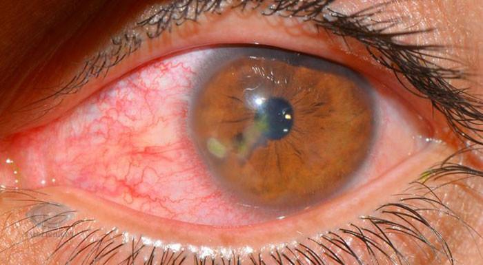 Кератит: причины, симптомы и лечение, фото, последствия