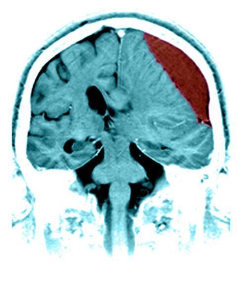 Кровоизлияние в мозг: причины, симптомы, последствия - сайт о