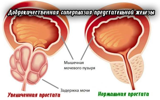 Дгпж 2 степени: симптомы и лечение, нужна ли операция, эхопризнаки диагноза, лекарства