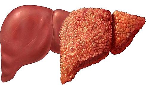 Гепатоз печени - что это такое и как лечить? симптомы и лечение