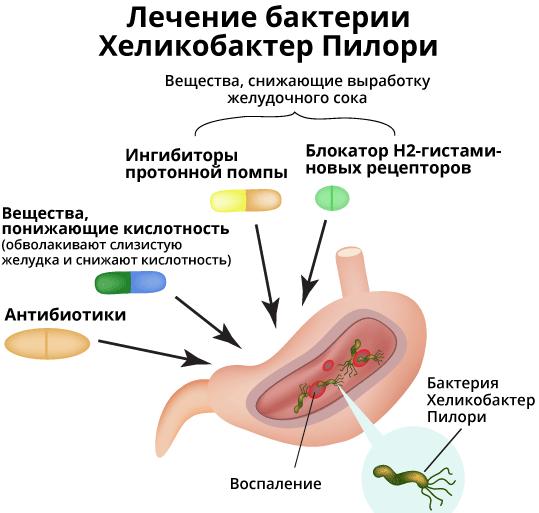Что предлагает медицина для борьбы с helicobacter pylori | стимбифид плюс