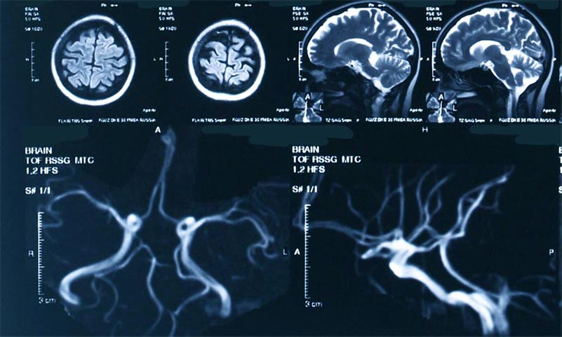 Что такое кт головного мозга